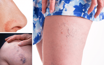 Möglichkeiten der Laserbehandlung von Äderchen & Blutgefäßen