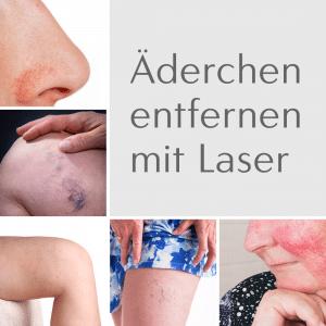 laserbehandlung besenreiser anglekastien rosacea berlin laser