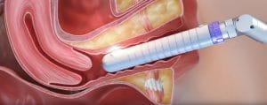 CO2RE-Intima-Vaginalstraffung-Berlin-Behandlung