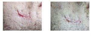 Narbenbehandlung-narben-heilen-laseraesthetik berlin