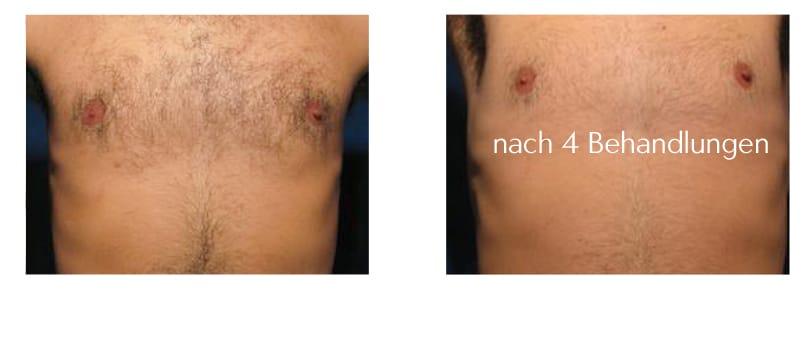 brusthaare-entfernen-lasern-laseraesthetik berlin haarentfernung brust