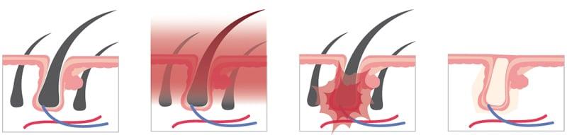 dauerhafte-haarentfernung laser berlin wirkungsweise