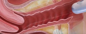inkontinenz-laserbehandlung vaginalstraffung berlin lasertherapie