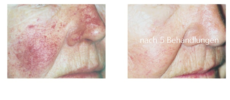 rosazea-couperose-behandlung-laser-mv-rostock-laseraesthetik berlin