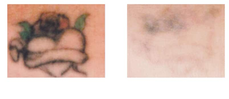 tattoo-entfernen-in-berlin tattoo removal laseraesthetik berlin