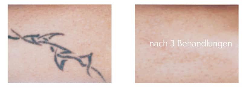 tattoo-entfernen-mit-laser-berlin laseraesthetik tattoospezialist tattoo removal