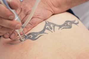 tattooentfernung berlin laser spezialist
