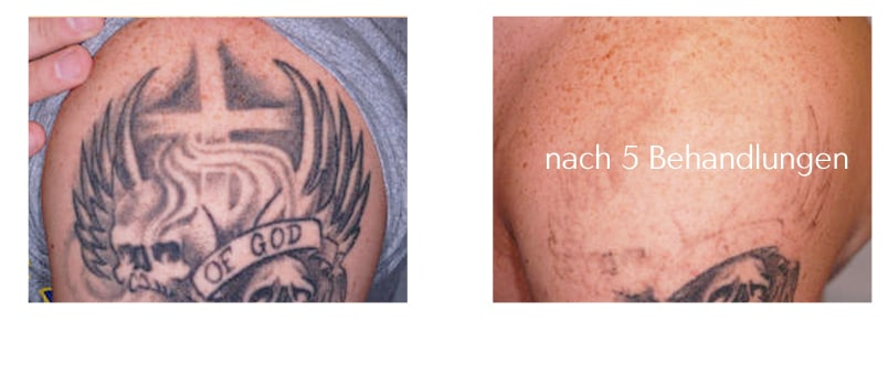 tattooentfernung-tattoo-lasern-berlin tattoo removal expert prices preise laseraesthetik berlin