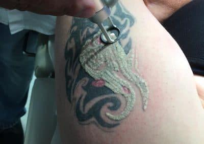 Tattooentfernung erste Sitzung LaserÄsthetik Berlin