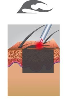 Erste Laserbehandlung Tattooentfernung
