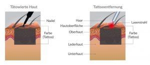Tattooentfernung wirkungsprinzip wie funktioniert laser tattoo entfernung berlin
