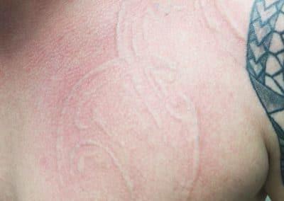 Tattooentfernung letzte Sitzung LaserÄsthetik Berlin