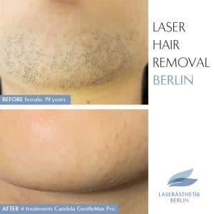 Dauerhafte Haarentfernung Gesicht Laser hair Removal