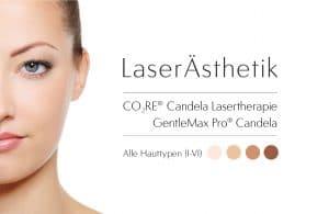 laserästhetik berlin laser spezialisten candela alle hautfarben