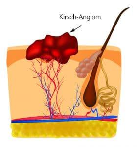 entfernung kirschangiom hemangioma laser berlin