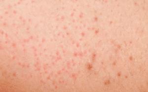 eingewachsene haare rasierbrand mit laser behandeln laserbehandlung