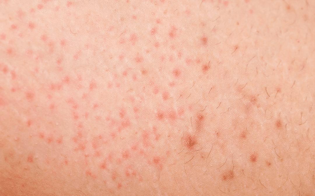 Rasurbrand, eingewachsene Haare, Follikulitis – Die Laserbehandlung